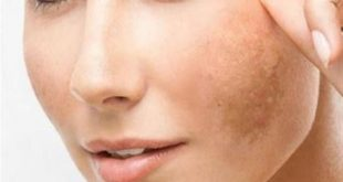 التخلص من البقع الداكنة في الوجه